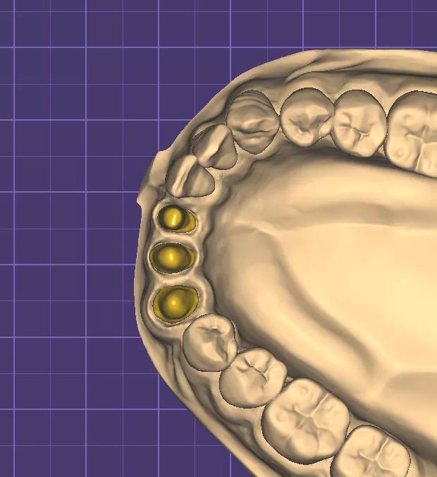 cadcam dental