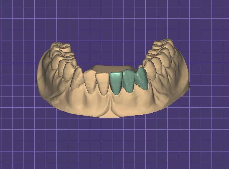 zirconia cadcam dental