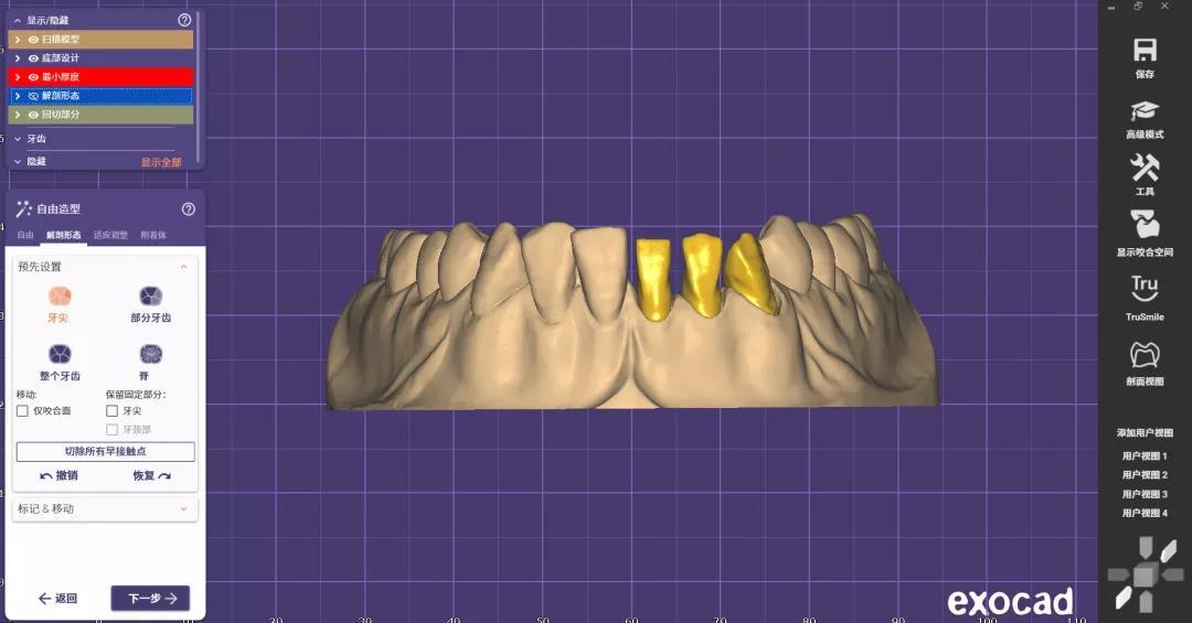 zirconia cadcam dental2