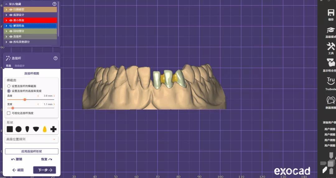 zirconia cadcam dental6
