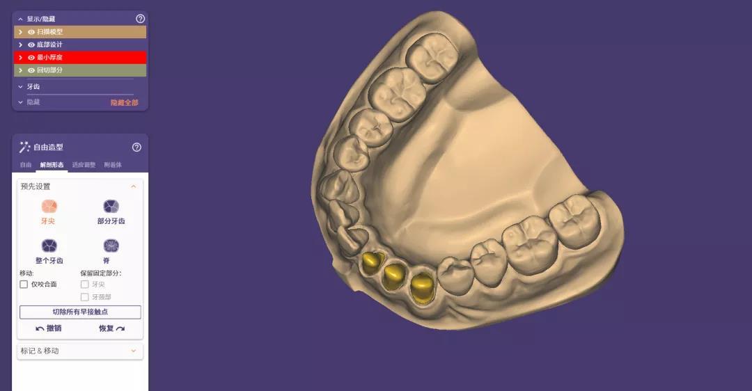 cadcam dental2