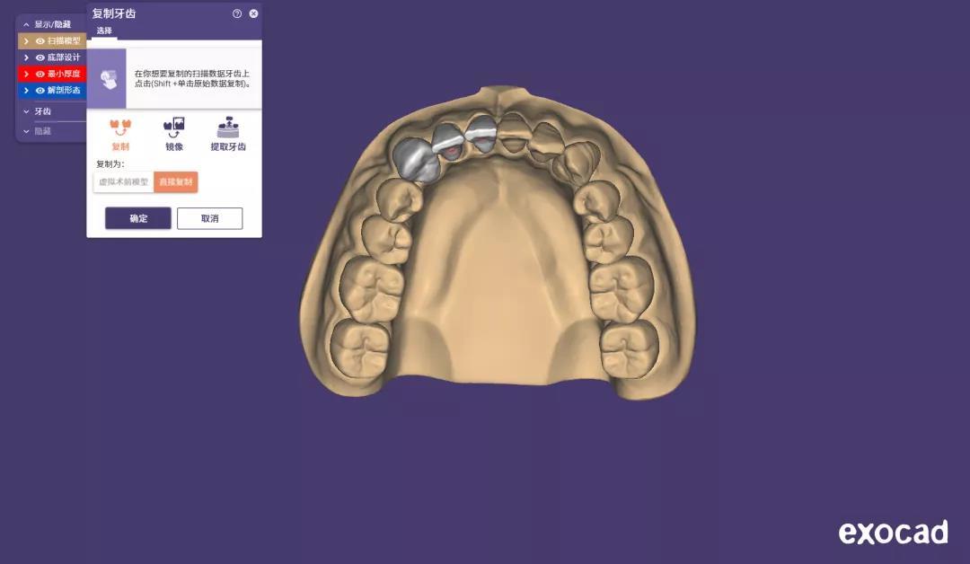 cadcam dental3