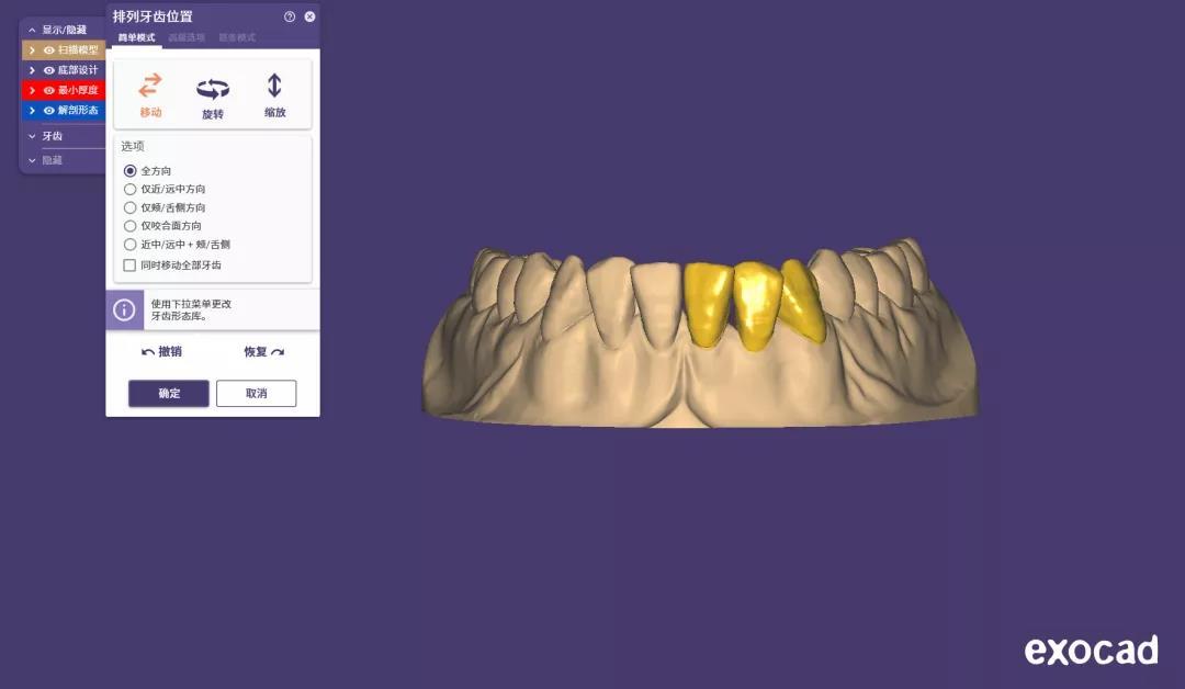 zirconia dental